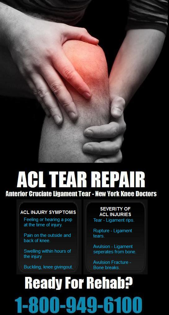 ACL Injury Doctor